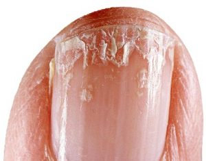 Brittle Nails Treatment What Causes And You Can