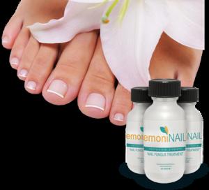 Emoninail for toenail fungus