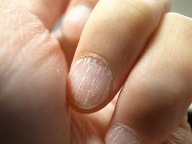 Split Nails – What Causes Split Nails and How to Repair Them - Nail ...