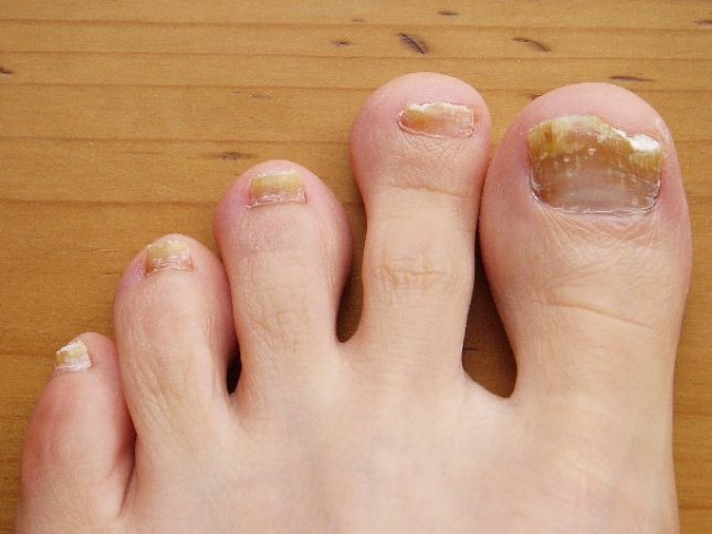 Thick Yellow Toenails
