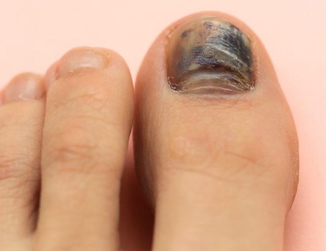 The Ultimate Guide to Treating Black Toenail Fungus - Nail Fungus ...