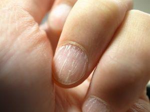 Cracked Nails - 7 Common Reasons And Ways To Repair Them - Nail ...