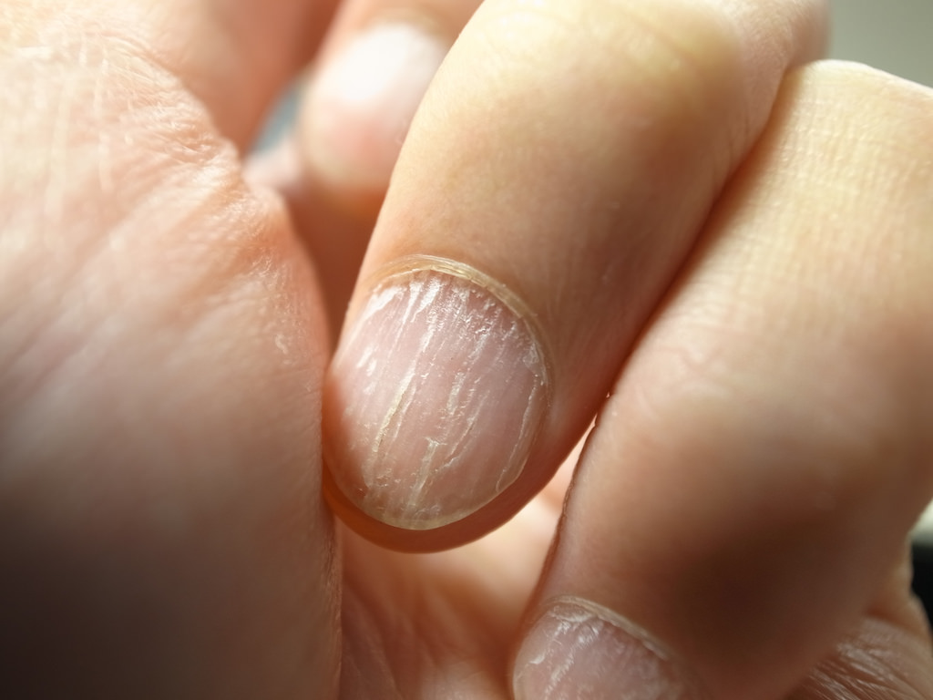 Cracked Nails - 7 Common Reasons And Ways To Repair Them - Nail ...