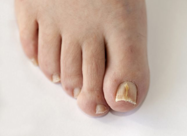 what does toenail fungus look like in the early stages